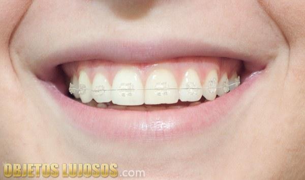 Los brackets de zafiro siguen revolucionando la ortodoncia